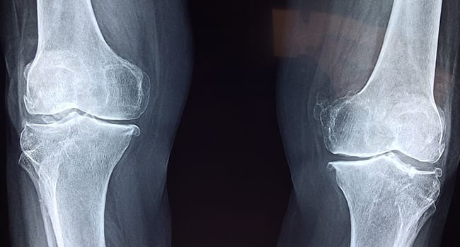 Why most knee injuries don't need surgery to heal