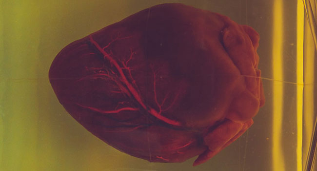FDA approves new cardiovascular drug based on study at U of A