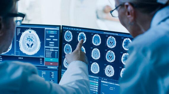 New way identified to track severity and progression of ALS